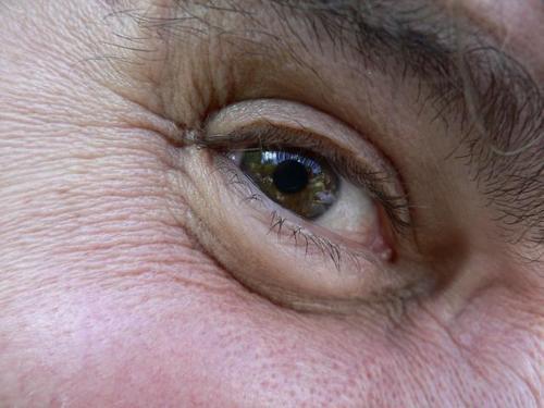 6/25/07 Eye